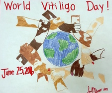 World_Vitiligo_Day_2016