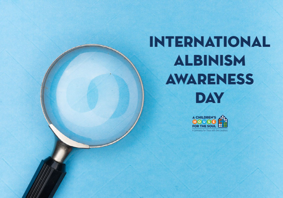 Blog_ INTERNATIONAL ALBINISM AWARENESS DAY IS TODAY!